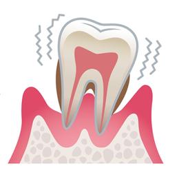 重度歯周病